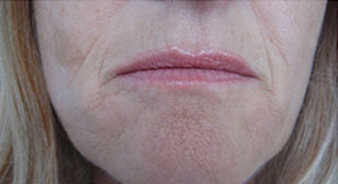 Injectable sculptra